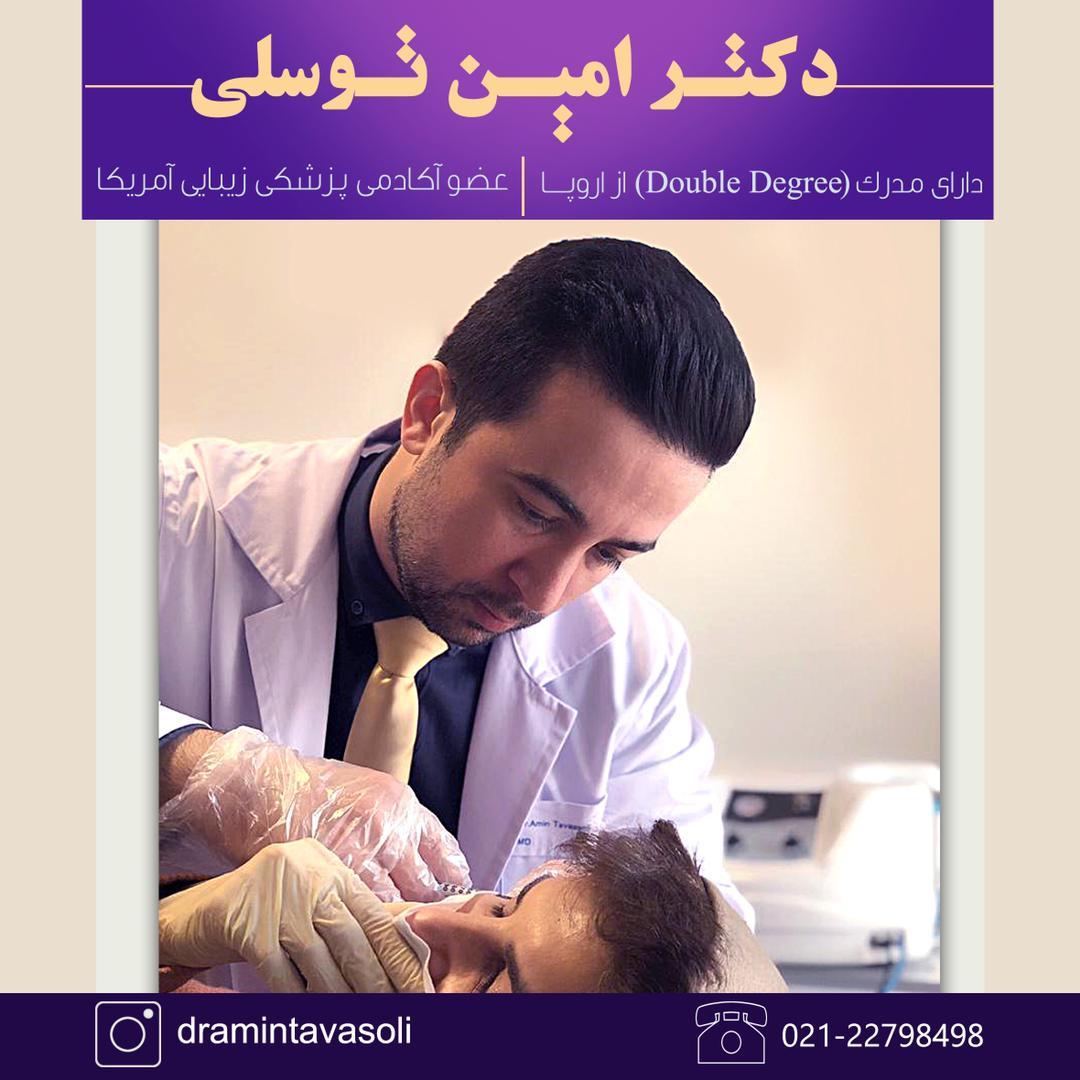 Nanofat injection by Dr Amin Tavasoli in Tehran
