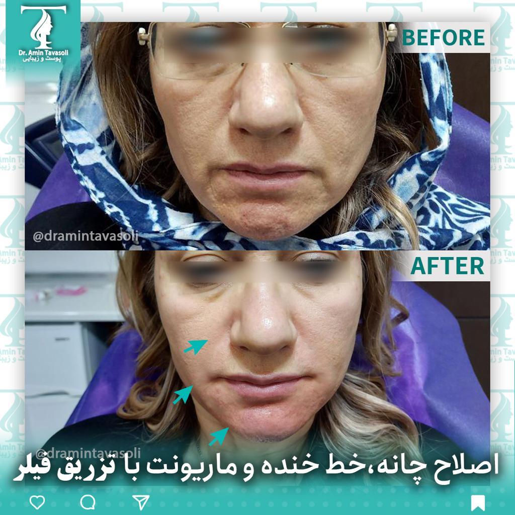 اصلاح خط خنده و ماریونت در تهران